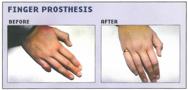 finger prosthesis