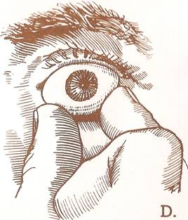 Prosthetic eye care