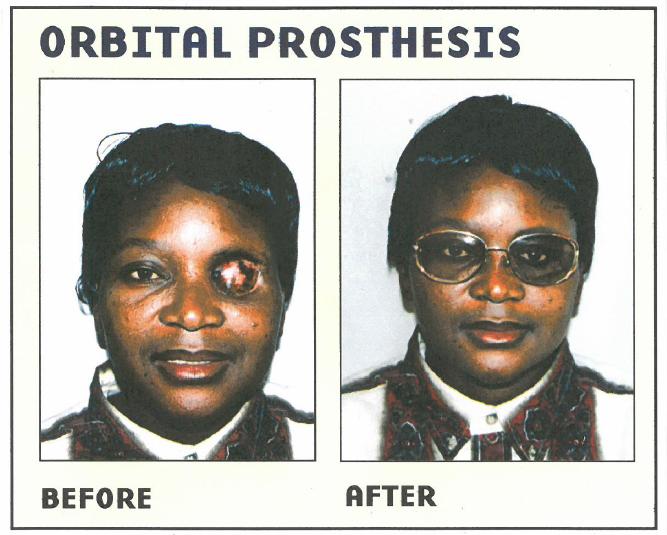 orbital prosthesis