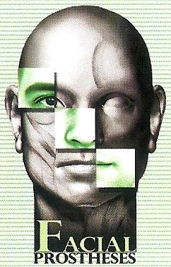 Facial prostheses
